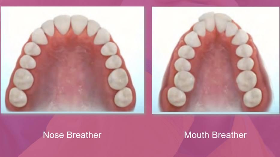 Er du mundånder?