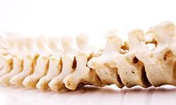 6 sunde vaner for ryggen